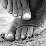 """Glivice na nohtih – jih lahko pozdravimo z """"naravo""""?"""