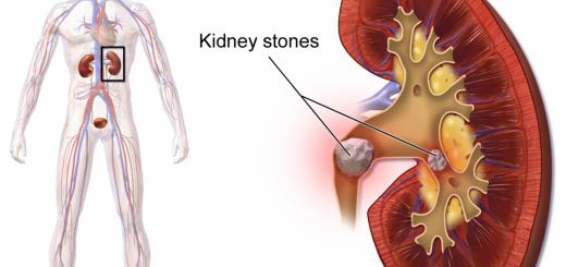 ledvicni-kamni-naravna-zeliscna-pomoc