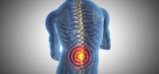 Bolečine v križu - znaki, simptomi, vzroki in samopomoč