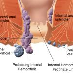 Hemoroidi – znaki, simptomi in naravno zdravljenje