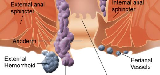 Hemoroidi - znaki, simptomi in naravno zdravljenje