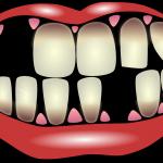 Parodontalna bolezen – tihi ubijalec
