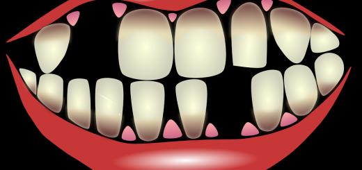 Parodontalna bolezen - tihi ubijalec
