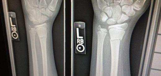 Osteoporoza - ko se kosti lomijo